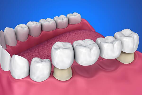 Köprü Diş Protezi Nedir ?