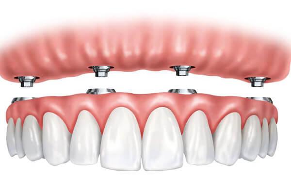 Diş Protezi Nedir ? Diş Protezi Hakkında Bilgi Alın