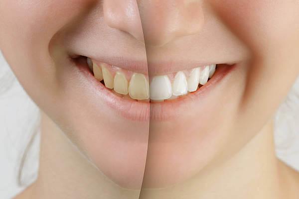 Diş Beyazlatma Uygulaması Öncesi ve Sonrası