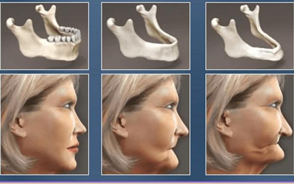 Diş Kaybı ve Yaşlılık