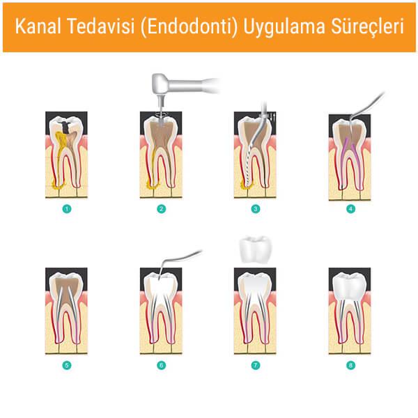 Kanal Tedavisi - Endodonti Tedavi Süreci Nasıldır?