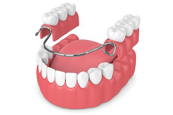 Kancalı (kroşeli) Diş Protezi Nedir?