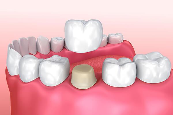 Tekli Sabit Diş Protezi Nedir ?