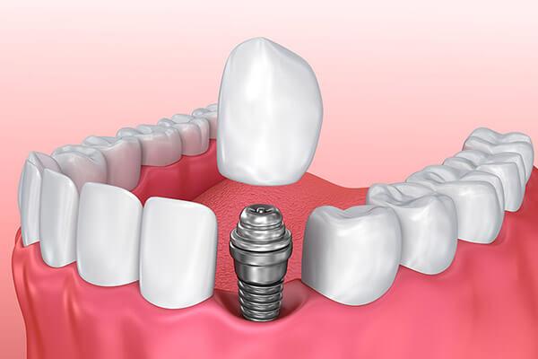 Dental İmplant Uygulaması