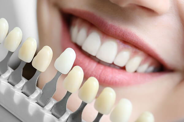 Gülüş Tasarımı ve Estetik Diş Hekimliği