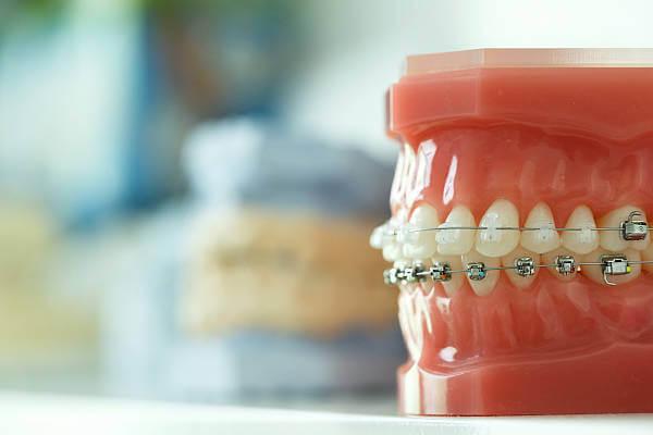Ortodonti Nedir? Nasıl Tedavi Olunur?
