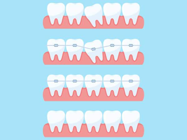 Ortodonti Tedavi ve İyileşme Süreçleri