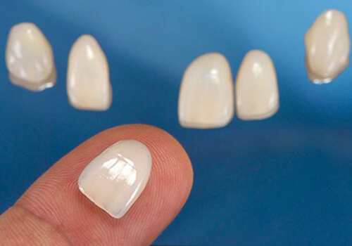Lamina Yaprak Diş Kaplama Uygulaması