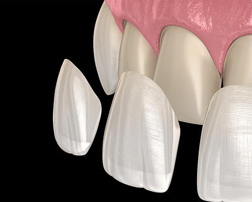 Yaprak Porselen Diş Kaplaması İle Doğal Gülüşler