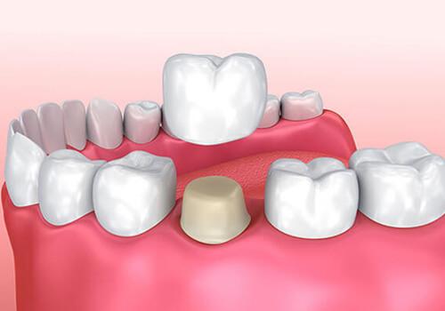 Tekli Zirkonyum Diş Kaplama Uygulaması