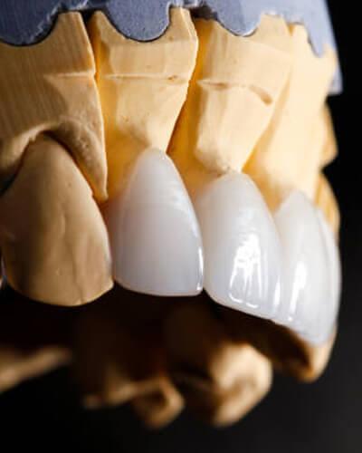 Zirkonyum Diş Kaplama İle Doğal Diş Görünümü Mümkün!
