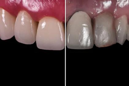 Zirkonyum Diş Kaplama Sonrası Genel Görünüm Nasıldır?
