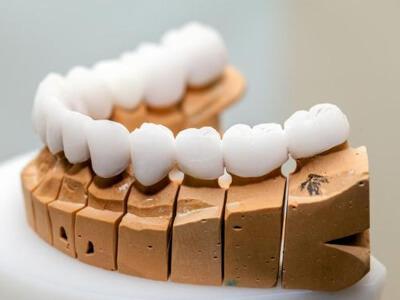 Üsküdar Çengelköy Zirkonyum Diş Kaplaması - Dent Esteline